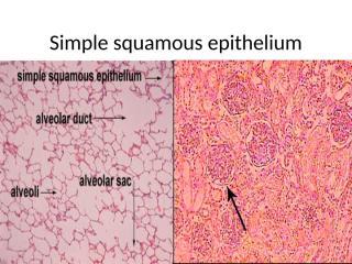 Simple squamous epithelium.pptx